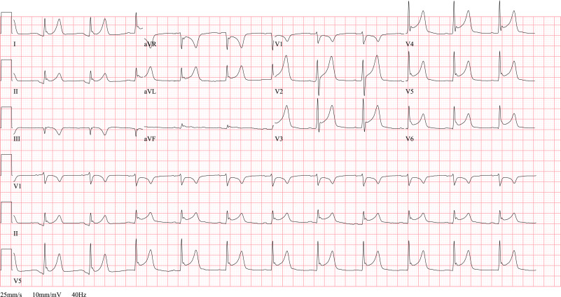 ST elevation: Differential diagnosis and caveats  A