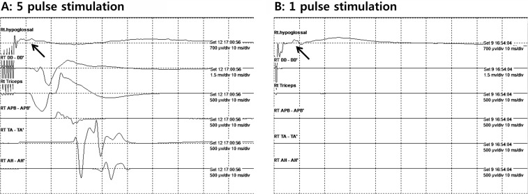 Corticobulbar motor evoked potentials from tongue muscles used as a