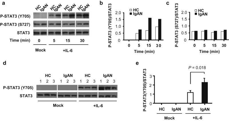 Inhibition of STAT3 Signaling Reduces IgA1 Autoantigen