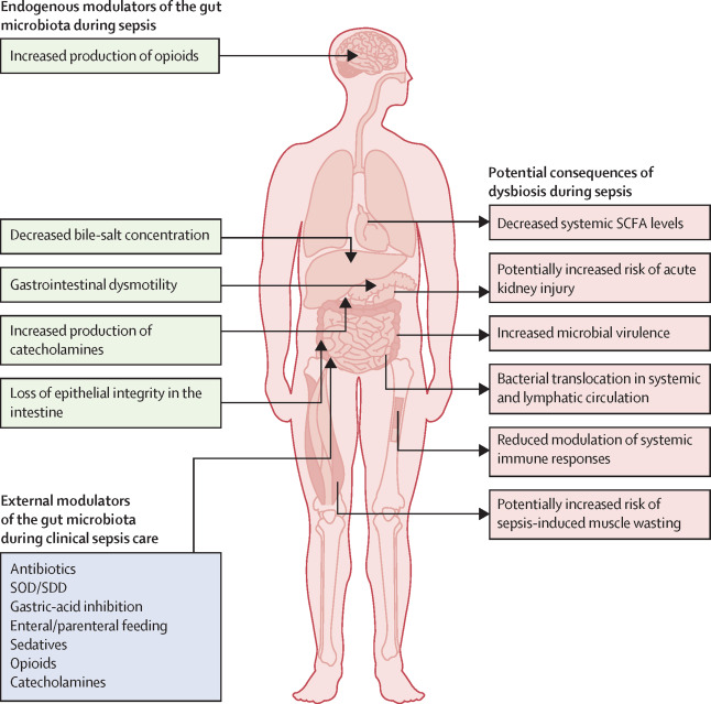The Role Of The Gut Microbiota In Sepsis Sciencedirect
