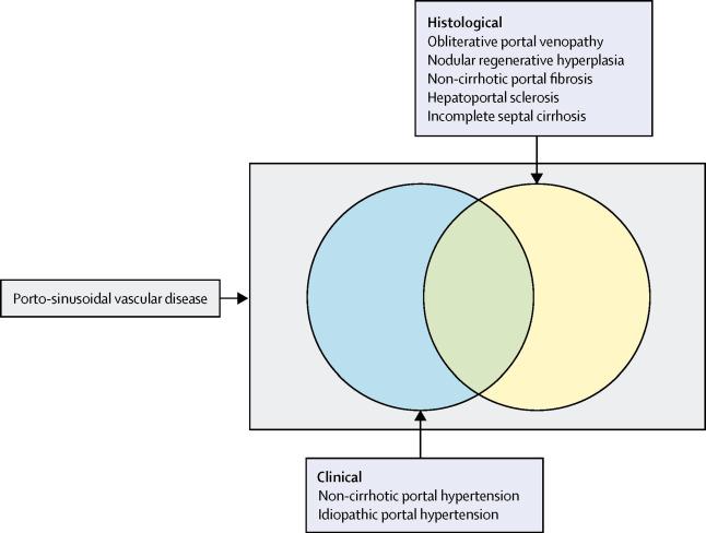 Porto-sinusoidal vascular disease: proposal and description of a