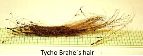 Hair Elemental Analysis For Forensic Science Using Nuclear And Related Analytical Methods Sciencedirect