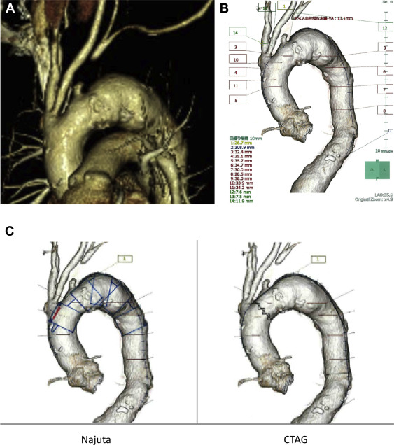 Fenestrated Endovascular Repair Of Aortic Arch Aneurysm In Patients
