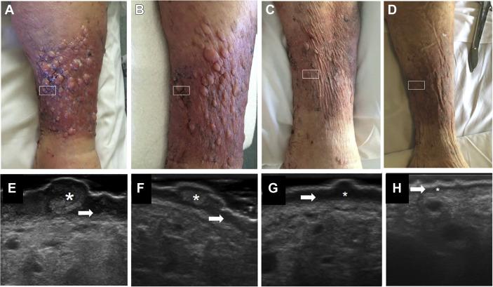 papillomatosis of legs)