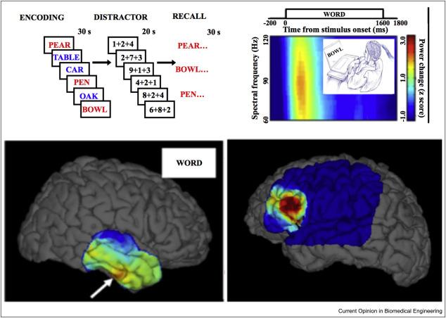 H Blumenfelds Neuroanatomy Through Neuroanatomy Through Clinical