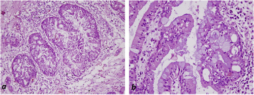 Oncocytic papilloma nasal cavity Exophytic growth papilloma,