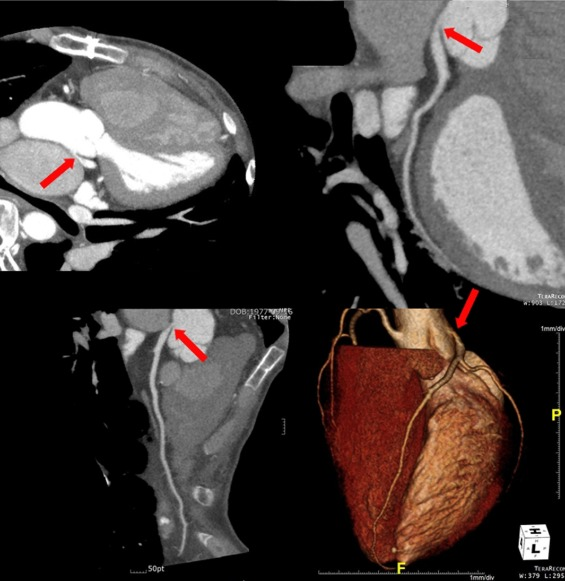Left Main Coronary Artery Compression By A Dilated Pulmonary Artery