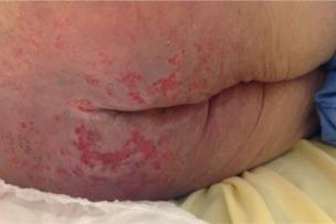 Escarres périnéales et dermite associées à l'incontinence ...