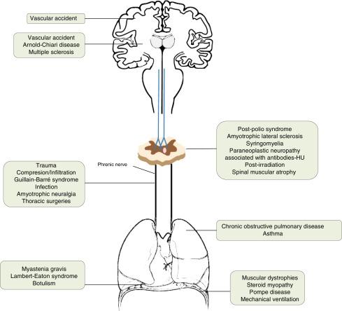 Diaphragmatic dysfunction - ScienceDirect