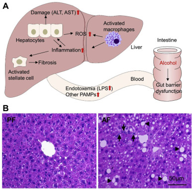 Targeting the gut barrier for the treatment of alcoholic liver gut liver axis in the development of alcoholic liver disease a schematic diagram of pathological alterations at the gut liver axis after alcohol ccuart Image collections