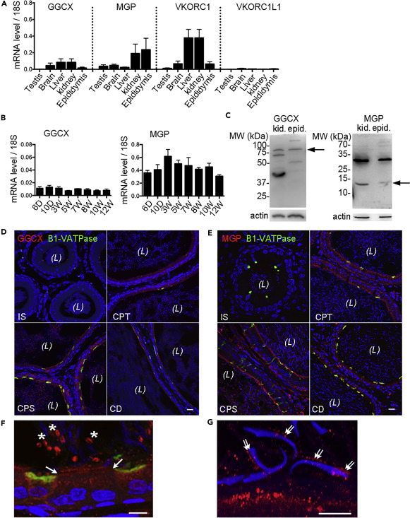 Vitamin K2-Dependent GGCX and MGP Are Required for Homeostatic