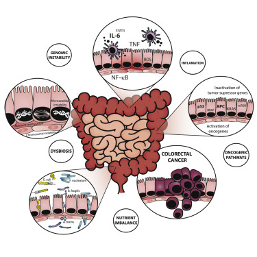 Diet Microbiota And Colorectal Cancer Sciencedirect