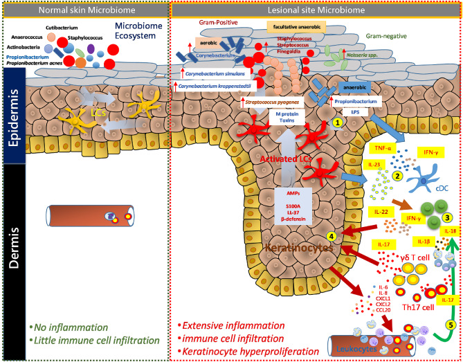 dysbiosis psoriasis)