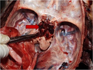 Retroclival Hemorrhage Due To Blunt Force Head Trauma An Autopsy Case Report Sciencedirect