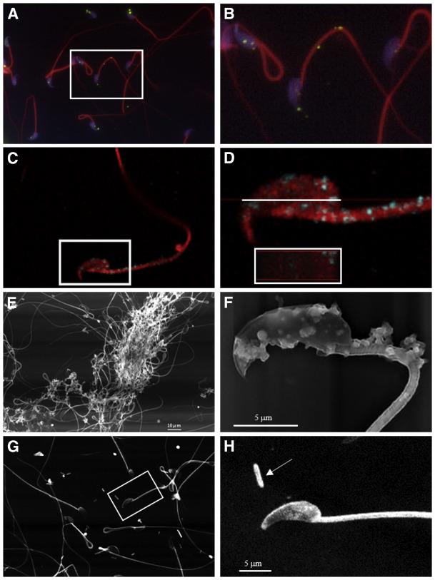 ureaplasma oka trichinosis invazív stádium