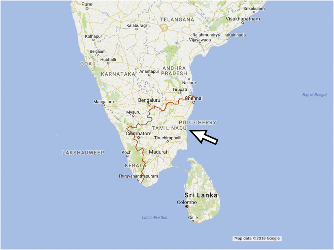 Sclerosteosis: Report of type 1 or 2 in three Indian Tamil