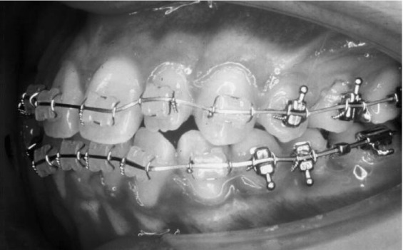 Orthodontic Wire An Overview Sciencedirect Topics