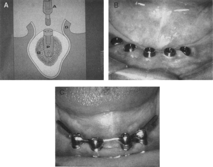 Implants and Devices - ScienceDirect