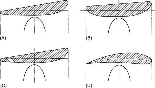 Ducted Propeller - an overview   ScienceDirect Topics