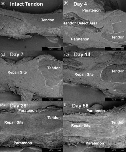 Tendon Sheath - An Overview | ScienceDirect Topics