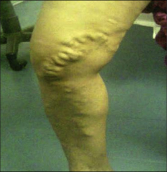 Picioare curate crema varicose pret ukraina