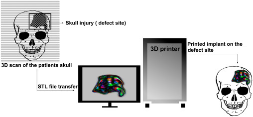 bd4338c8db6 3D printers for surgical practice - ScienceDirect
