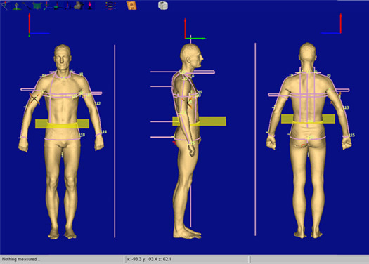 3D body scanning - ScienceDirect