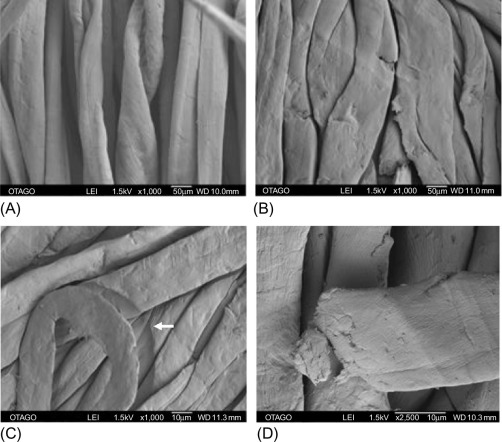 Fabric Damage - an overview | ScienceDirect Topics