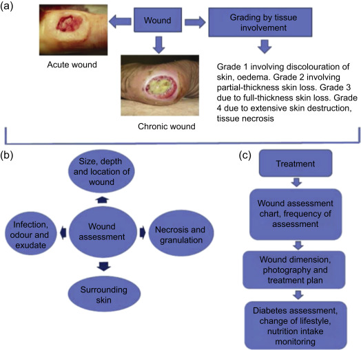 Application of natural polymers and herbal extracts in wound