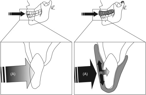 Mouth Protection in Sports - ScienceDirect