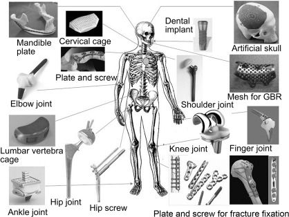 Orthopedic applications of metallic biomaterials - ScienceDirect