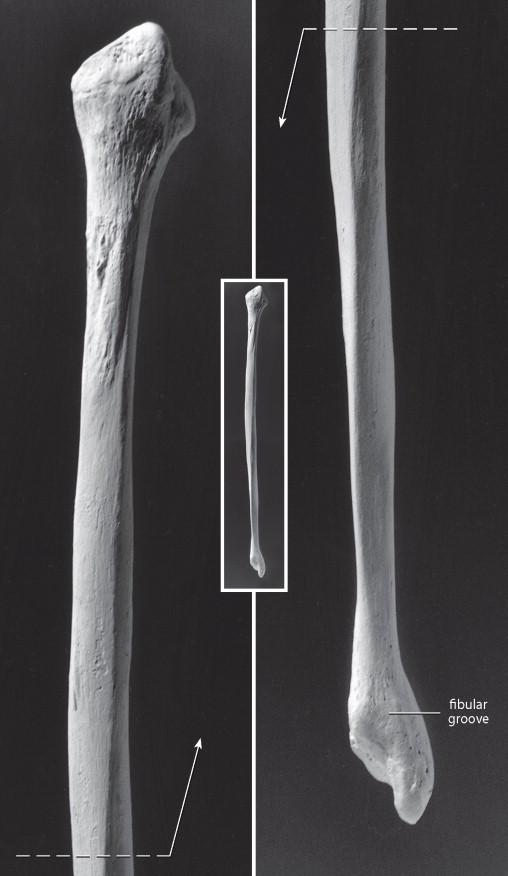 Fibula An Overview Sciencedirect Topics