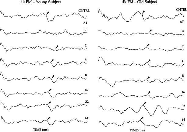 Auditory Temporal Processing during Aging - ScienceDirect
