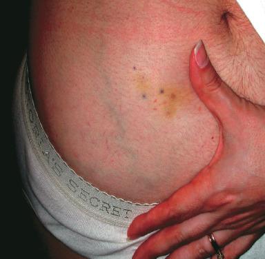 vena abdominală varicoseza)
