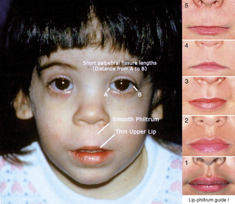 Fetal Alcohol Syndrome - an overview | ScienceDirect Topics