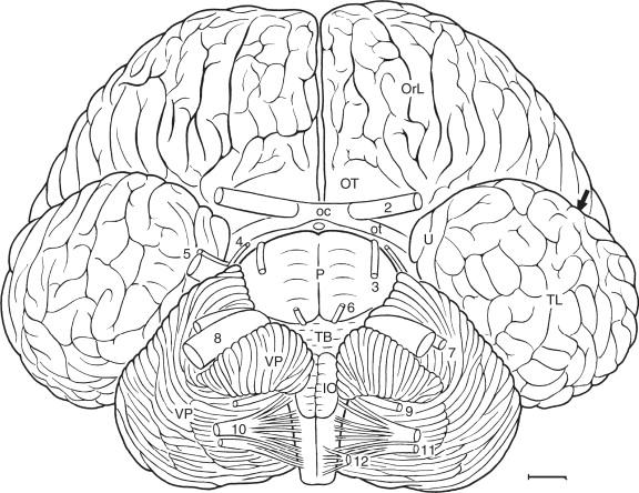 brain sciencedirect Horse Brain Size download full size image