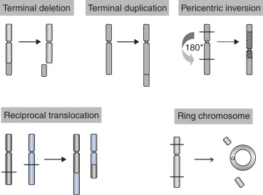 Chromosome Abnormality An Overview Sciencedirect Topics