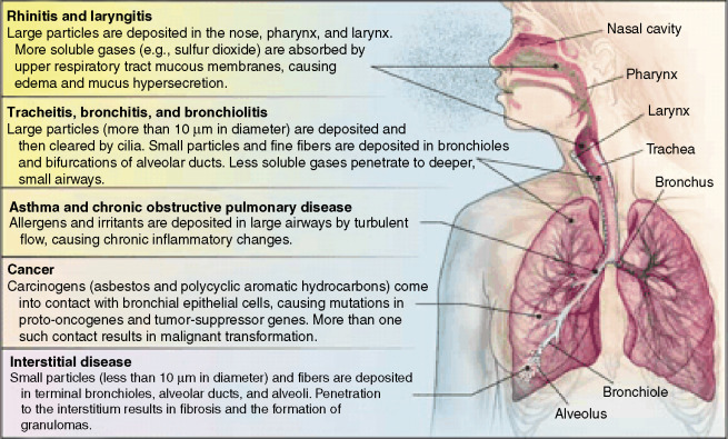 Respiratory Tract An Overview ScienceDirect Topics