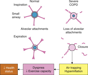 Airflow - an overview | ScienceDirect Topics