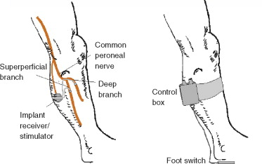 Stimulation for Return of Function after Stroke - ScienceDirect