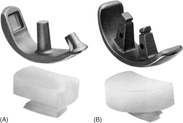 The Origins and Adaptations of UHMWPE for Knee Replacements