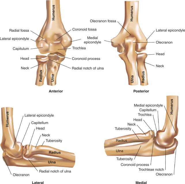 The Clinical Performance Of Uhmwpe In Elbow Replacements Sciencedirect