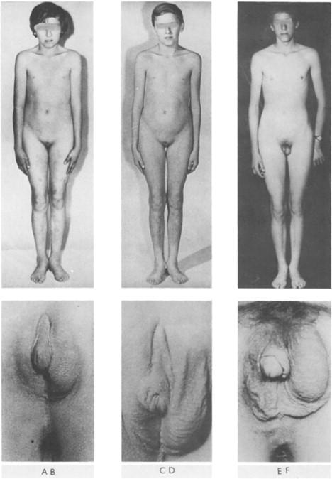 Naked ass tube