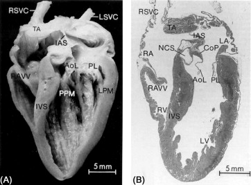 An overview of avian heart structure and development sciencedirect anterior view of adult chicken heart this diagram shows a longitudinal section from an adult avian heart from lu et al 1993a ccuart Images