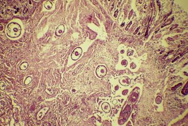 Nitazoxanid pinworms Giardiasisban szenvedő gyermekek gyógyszerei