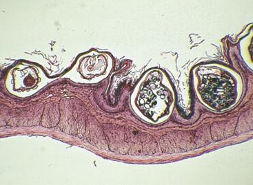 a hpv vírus csak nemi úton terjed mi a féreghajtó szer