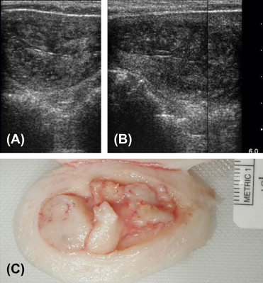 endometrial cancer in polyp