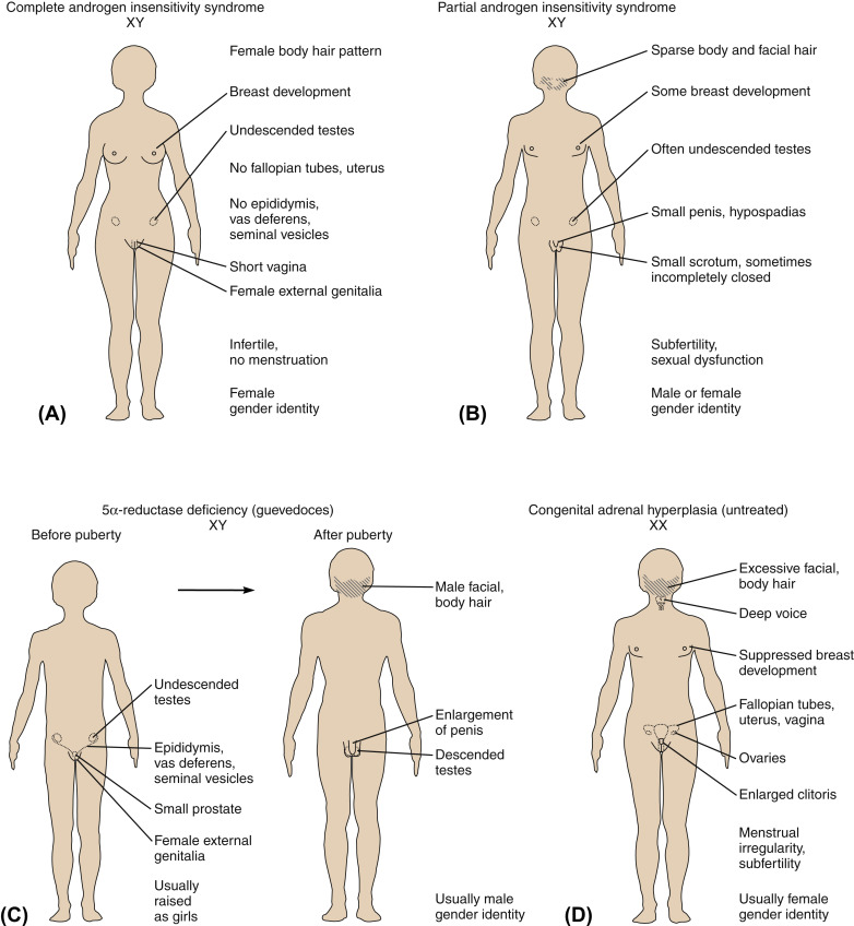 Pseudohermaphroditism An Overview Sciencedirect Topics