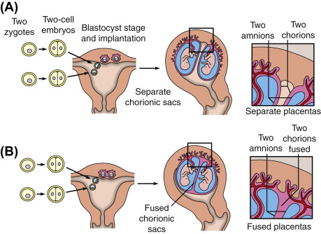 Dizygotic Twins - an overview | ScienceDirect Topics