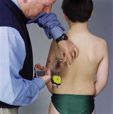 Skinfold Calliper - an overview | ScienceDirect Topics